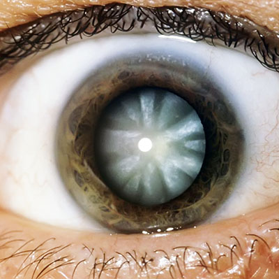 Eye Health Conditions - Cataract, Glaucoma, AMD, Dry Eye, Retinal Lesions