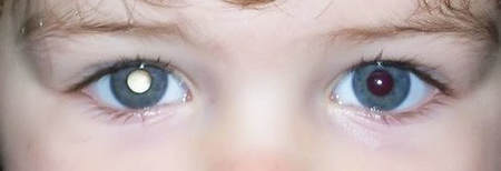 A white reflex in one eye of a child in a flash photo can mean a serious eye problem.