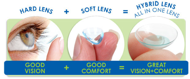 Hybrid lenses provide the good vision of a hard lens with the comfort of a soft lens. Eyecare Concepts Melbourne.